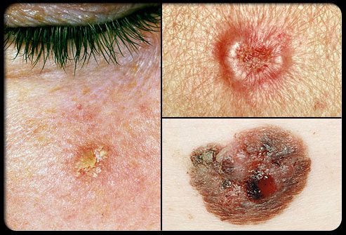 Skin Cancer – Natural Treatment Options