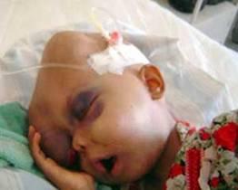 http://1.bp.blogspot.com/_9TzK4b0yCrw/ScQRZSVpvFI/AAAAAAAACL0/a9aJtZ4FC98/s400/leukemia.jpg