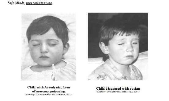 Safe Minds, www.safeminds.org. Picure One: Child with Acrodynia, form of mercury poisoning. Picture two: Child diagnosed with autism.