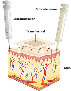 Inforgraph of the many transdermal delivery methods: transdermal, subcutaneous and intramuscular