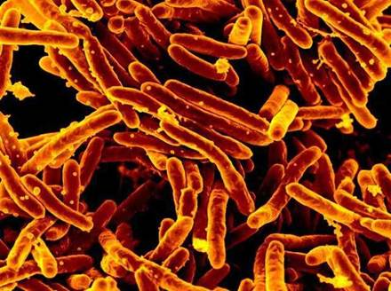 Although tuberculosis is declining around the world, drug-resistant strains of Mycobacterium tuberculosis are on the rise.