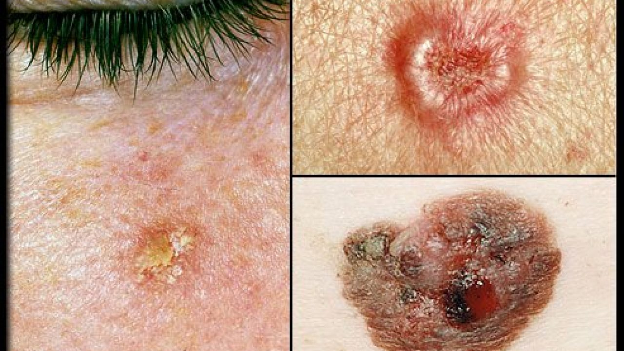 Skin Cancer Natural Treatment Options