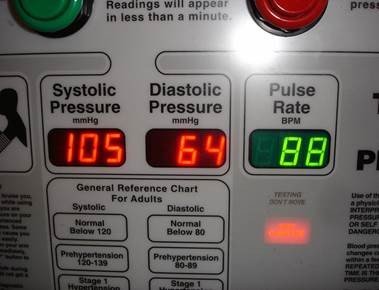 High Blood Pressure (Hypertension) Treatment Options