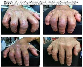 Diabetes hands.jpg