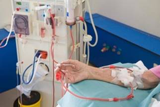 Image result for Plasmapheresis