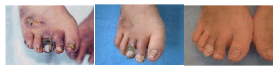 Diabetic foot lesion before CO2 footbath treatment