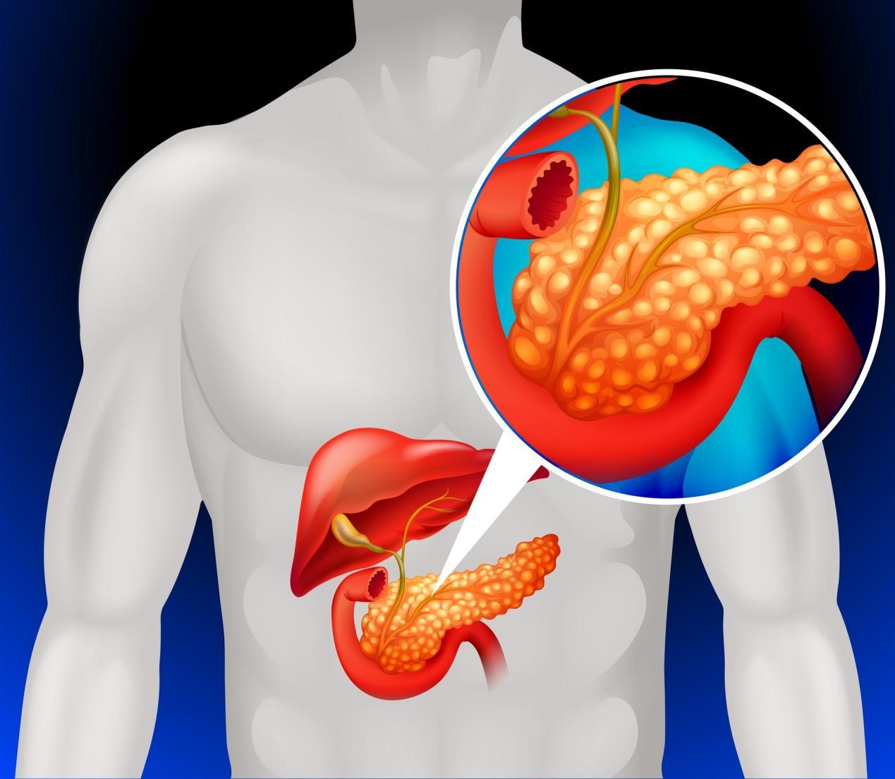 Understanding Pancreatic Cancer  Causes and Treatments