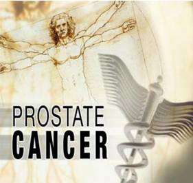 Prostate Cancer – Treatment Choices