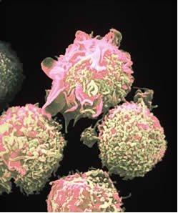 Understanding the Condition  of Cancer